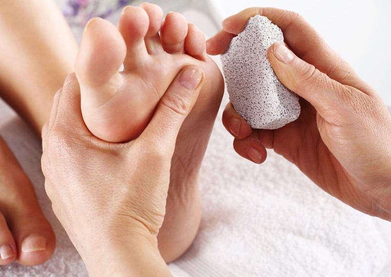 Как лечить натоптыши на стопе