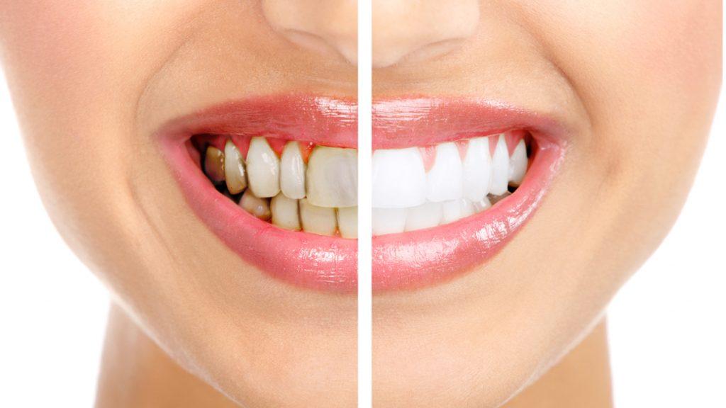 Как избавится от зубного налета в домашних условиях